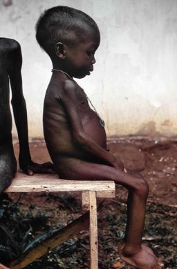 A Nigerian child suffering from the symptoms of Kwashiorkor. Courtesy of Lyle Conrad / CDC
