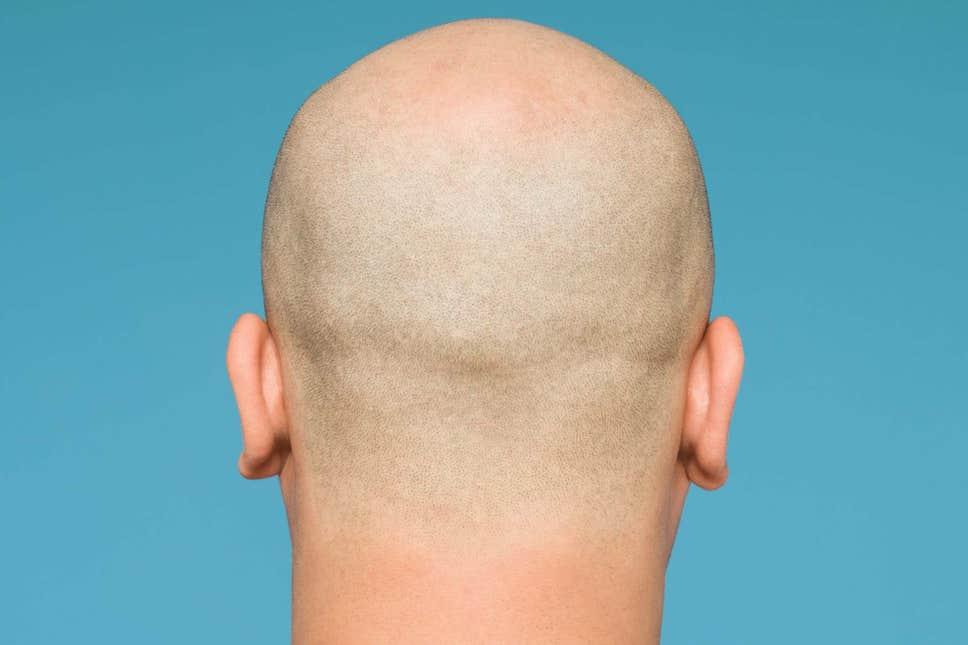 Women on bald men
